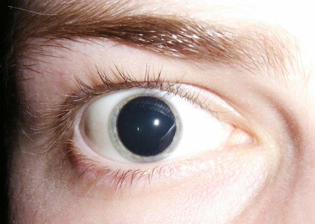 Cuando hay poca luz, el iris se encoge y la pupila se hace muy grande