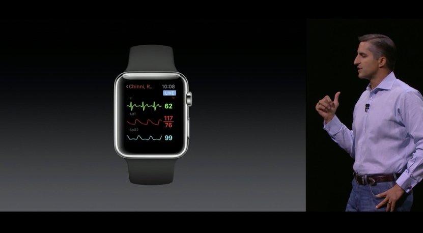 WatchOS 2 tendrá una mayor aplicación en el campo médico