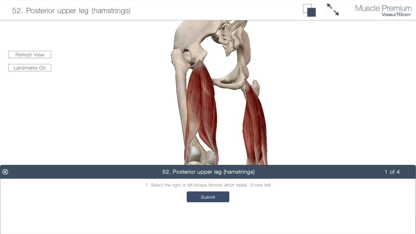 Ziemlich Kostenlos 3d Anatomie Software Zeitgenössisch - Anatomie ...