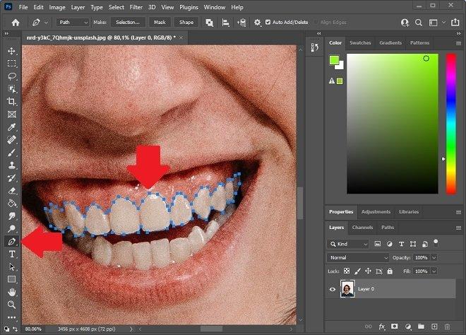 Выберите зубы